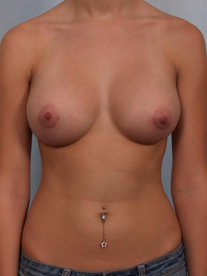 Plastic Surgery Breast Augmentation Surgeon Phoenix, AZ