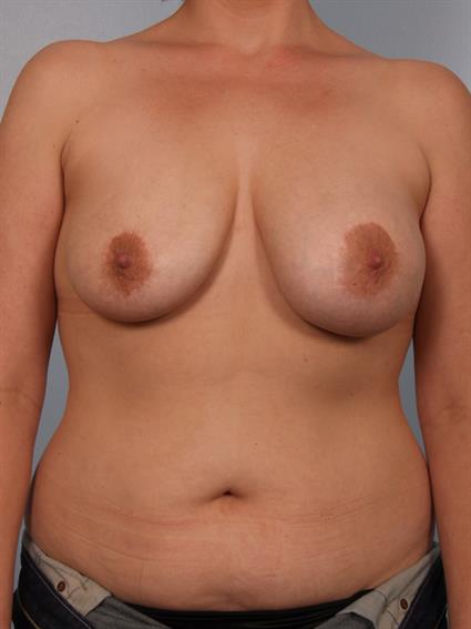 breast enhancement santa monica consume along