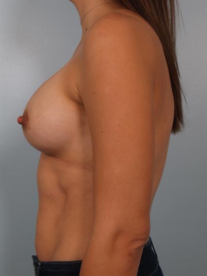 breast enhancement santa monica poser