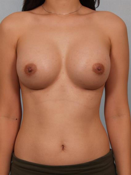 breast enhancement santa monica not bad