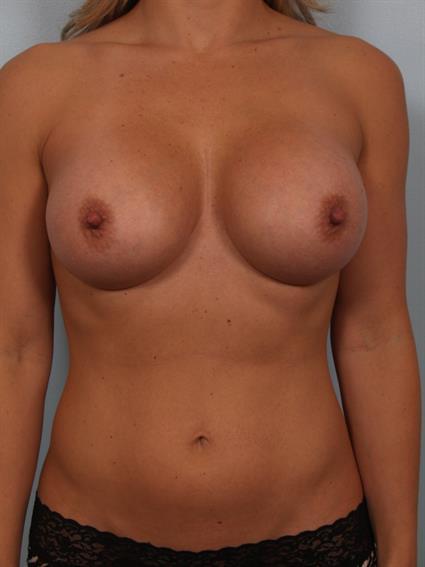 breast enhancement santa monica present