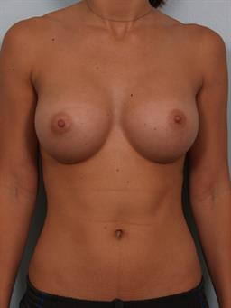 breast enhancement santa monica was
